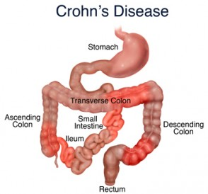 crohns_disease_figure_1_sized-294x274
